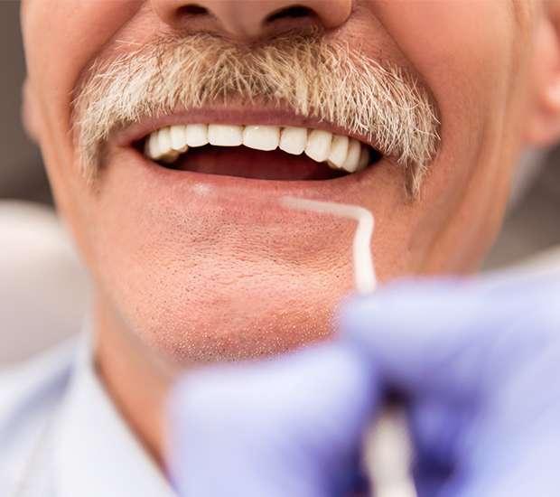 Dunwoody Adjusting to New Dentures
