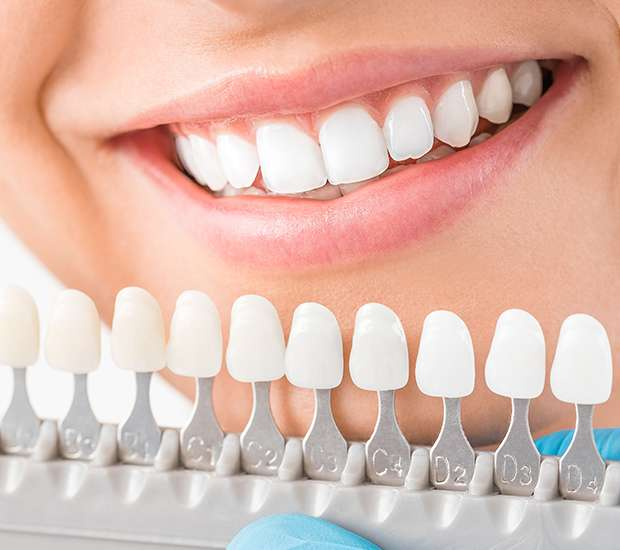 Dunwoody Cosmetic Dentist