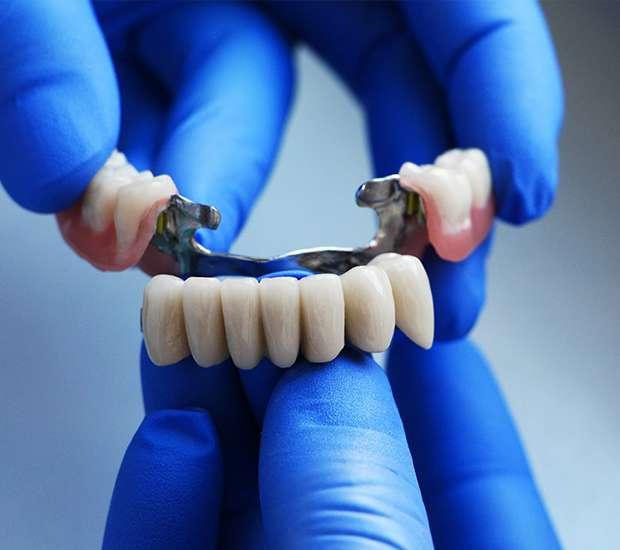 Dunwoody Dental Bridges