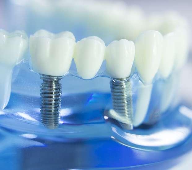 Dunwoody Dental Implants