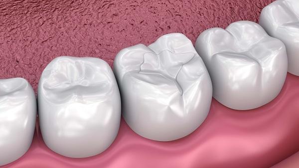 dental sealant Dunwoody, GA