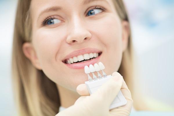 Dental Veneers and Dental Laminates Dunwoody, GA