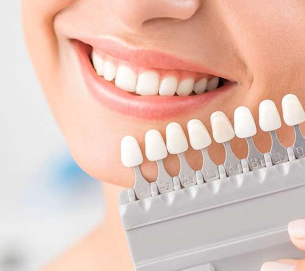Dunwoody Dental Veneers and Dental Laminates