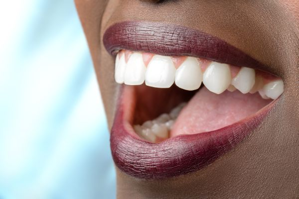 full mouth reconstruction Dunwoody, GA