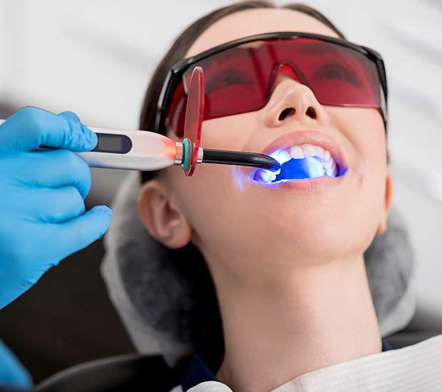 Dunwoody Professional Teeth Whitening